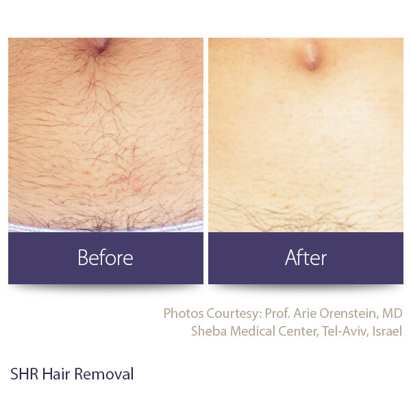 Washington Skin Solutions Laser Hair Removal