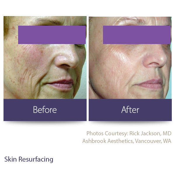 Washington Skin Solutions